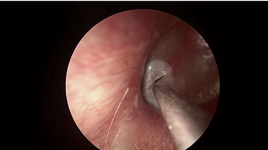 ENDOSCOPIC MUCOID OTITIS MEDIA DRAINAGE