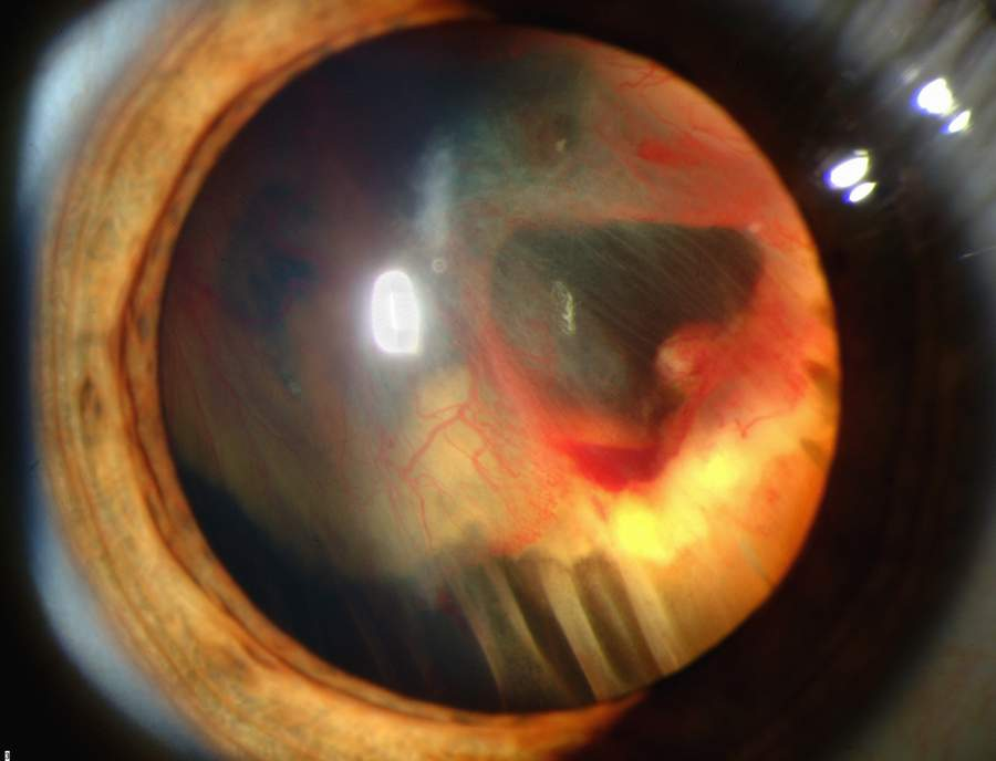 Slit_lamp_photograph_showing_retinal_detachment_in_Von_Hippel-Lindau_disease_EDA08